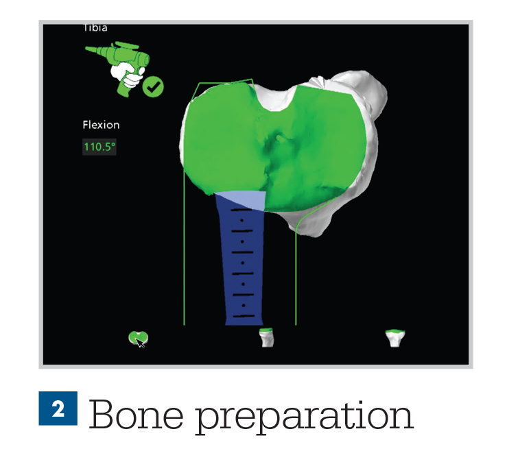 bone preparation