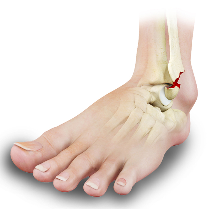 Ankle fracture_B